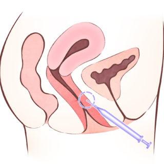 【Gスポットの開発】Gスポットへのヒアルロン酸注射