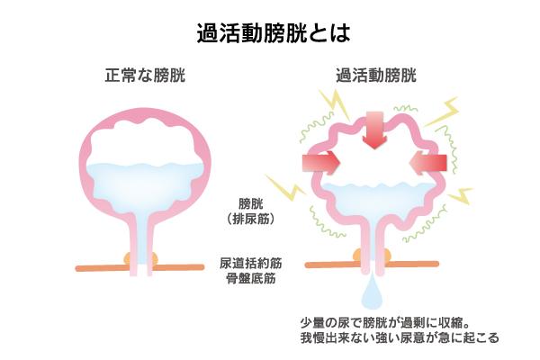 過活動膀胱2