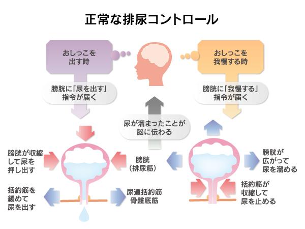 過活動膀胱1