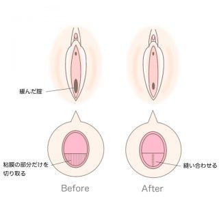 腟縮小手術のビフォー・アフター