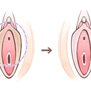 デリケートゾーンの黒ずみはどのくらいの日本人にあるの?8300人の小陰唇・大陰唇の黒ずみについて医師が調査してみた。